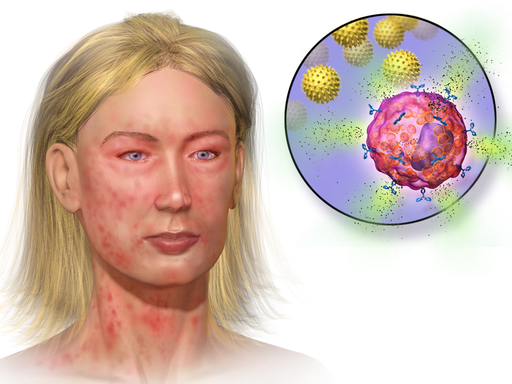 Illustration of person with suspected anaphylaxis