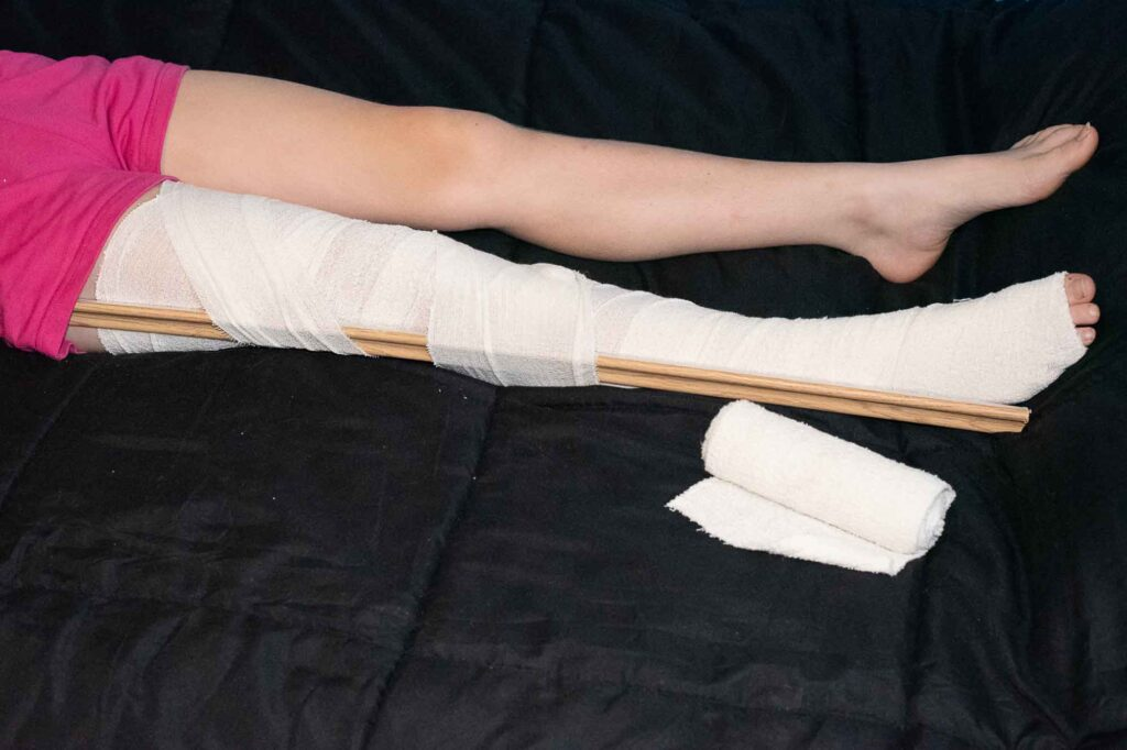 Pressure Immobilisation bandage applied to a leg with a splint